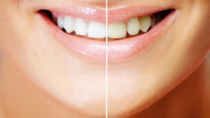 Get a brighter smile with The Smile Sciences Whitening Pen